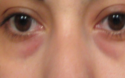 What Is Causing the Dark Circles under My Eyes?